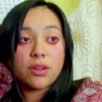 Yaritza, la mujer que llora sangre (video)