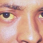 Hepatitis deteriora la funcionalidad del hígado: IMSS