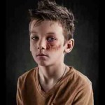 Bullying verbal deja cicatrices… las capta fotógrafo