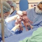 Conmovedor nacimiento de gemelas tomadas de la mano