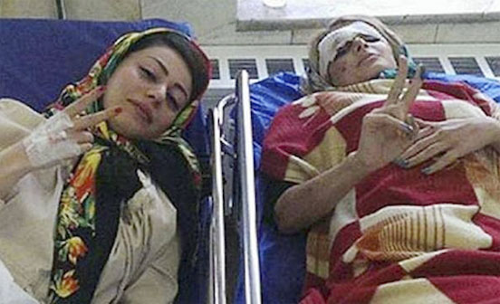 Photo of Chicas se toman selfie manejando y sufren accidente; hospitalizadas se toman foto