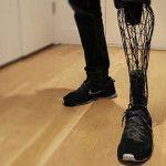Prótesis personalizada y de bajo costo con impresión 3D