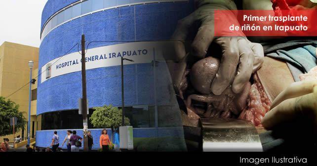 Photo of Realizan en HG primer trasplante de riñón en Irapuato