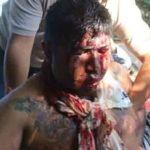 En Edo de México sacan los ojos a asaltantes