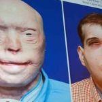 Reconstruyen rostro de hombre totalmente desfigurado