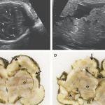 Hallan virus del zika en cerebro de un feto