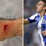 Héctor Herrera es baja en Porto por lesión