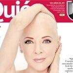 Edith González se muestra al natural en su lucha contra el cáncer