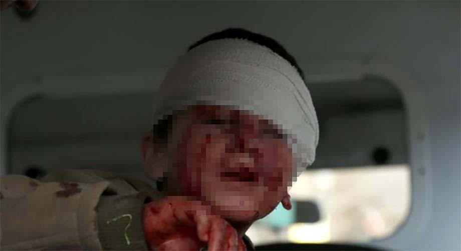 Photo of Ambulancia bomba en Kabul causó casi 100 muertos y 158 heridos
