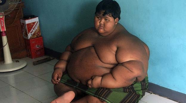 obesidad-1.jpg
