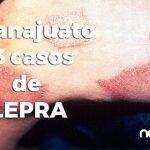 13 personas enferman de lepra en Guanajuato