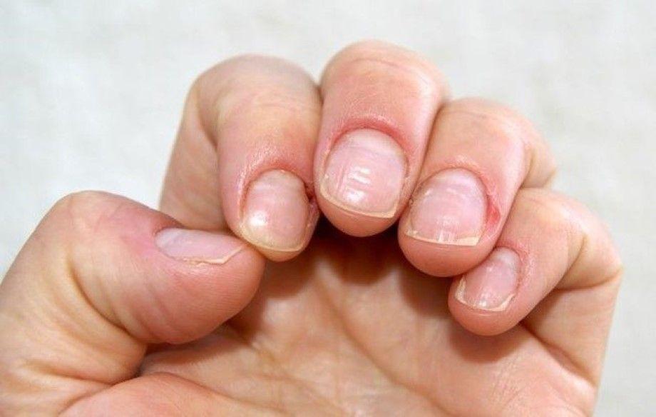 Photo of Lo que revelan las uñas sobre tu salud