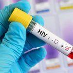 Una vacuna contra el VIH podría estar lista para 2021 ó 2022