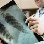 Mujer muere de cáncer de pulmón tras recibir trasplante de fumadora