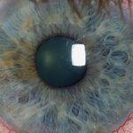Mujer sufre lesión en el ojo al no entender la letra del doctor en su receta