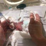 Dan de alta al niño más pequeño del mundo; pesaba 268 gramos al nacer
