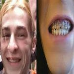 Pierde los dientes debido a las bebidas energéticas
