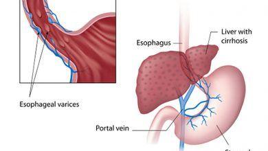 Photo of Ingesta excesiva de alcohol es causa de várices esofágicas: IMSS